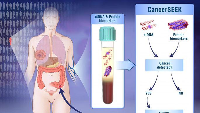 Ученые разработали новый вид анализа крови для выявления рака наранней стадии