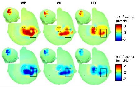 Активность мозга при движениях рукой по данным инфракрасной спектроскопии, детектирующей насыщение тканей кислродом: в момент бодрствования (WE), воображаемого движения в момент бодрствования (WI), в момент сна (LD). Действие во сне (LD) сопровождается более компактным возбуждением нейронов. // Current Biology