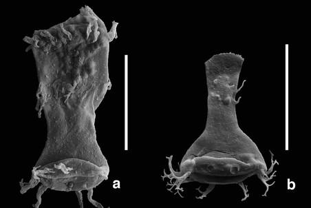 а) «Уродливый» планктон — изменивший свою форму представитель рода Ancyrochitina (хитинозои). б) Тот же самый микроорганизм нормальной формы. Возраст обоих экземпляров — около 415 млн лет.