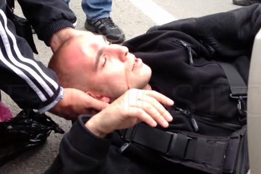 Полицейский, пострадавший в конфликте с кавказцами, госпитализирован с открытой черепно-мозговой травмой