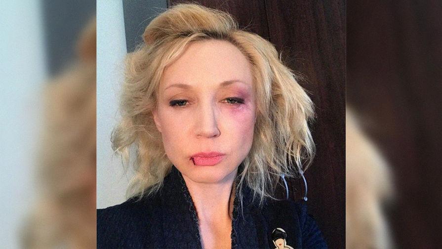 «Муж избил?»: Кристина Орбакайте сфингалом иразбитой губой ужаснула фанатов