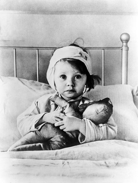 Раненая при налете немецкой авиации трехлетняя лондонская девочка Эйлин Данн в госпитале на Грейт Ормонд стрит
