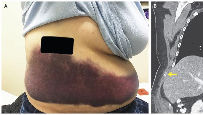 Женщина сломала ребро вовремя кашля (18+)
