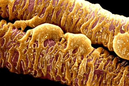 Некоторые клетки внутри развитых опухолей могут подавлять метастазы