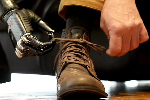 Найджел Экланд обладает самым совершенным в мире бионическим протезом руки