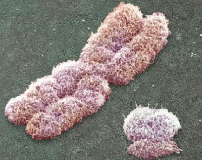 Картинки по запросу X- и Y-хромосомы в электронном микроскопе