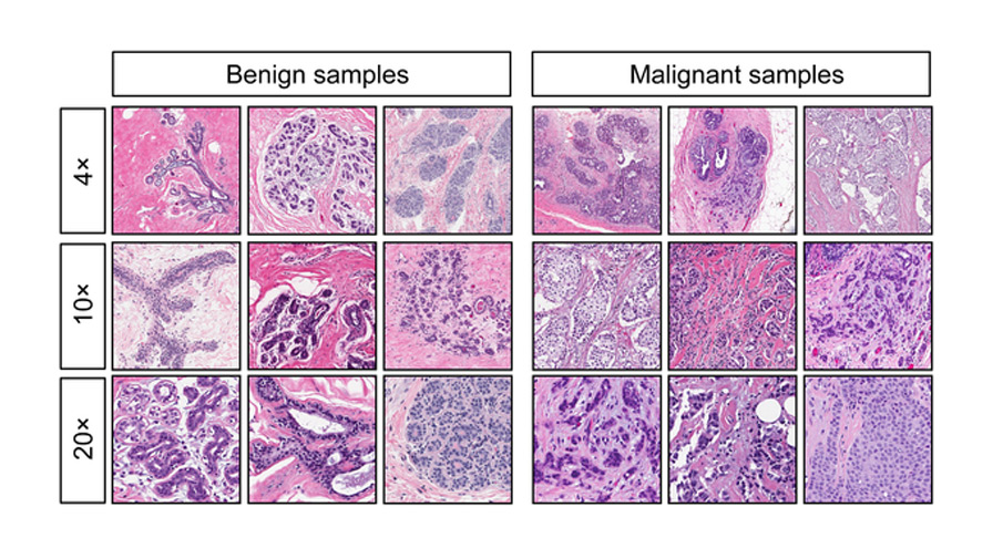 Образцы гистологии здоровой ткани (справа) и ткани со злокачественными опухолями (слева)