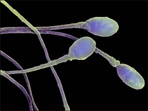 От чего погибают сперматозоиды