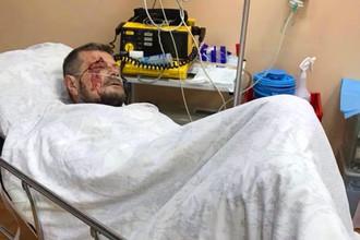 Раненый депутат Верховной рады Игорь Мосийчук в больнице, 25 октября 2017 года