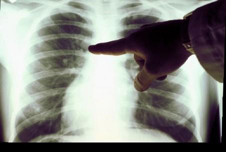 Ученые выяснили, какие мутации приводят к раку легкого у некурящих людей
