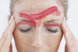 Мимические лицевые мышцы играют важную роль при мигрени