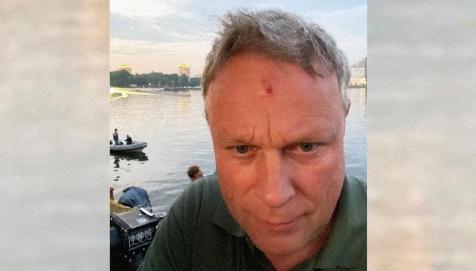 «Много оружия, это комедия»: Жигунов рассказал о ранении