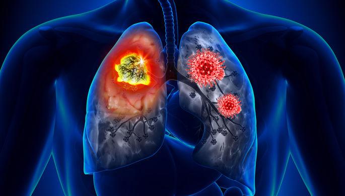 «Усложняет диагностику»: как не спутать COVID-19 и рак легких