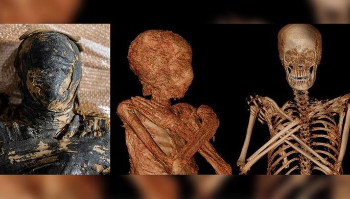 «Загадочная дама»: ученые нашли первую беременную мумию