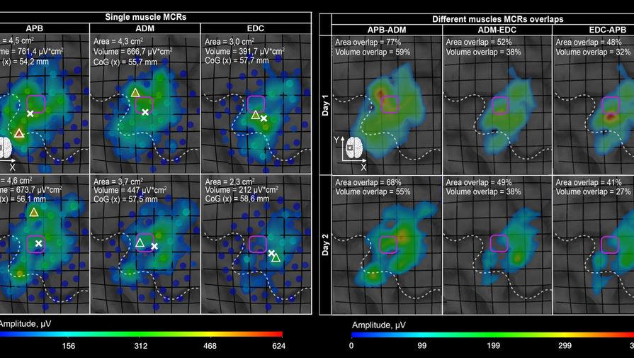 Магнитные импульсы помогли создать диагностические карты активности мышц
