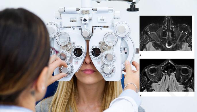Узелки в глазах: найдено новое осложнение после коронавируса