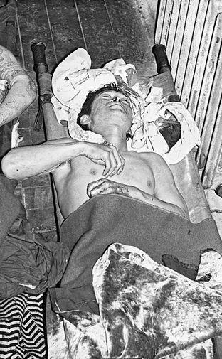 Раненый пассажир самолета «Boeing 707»