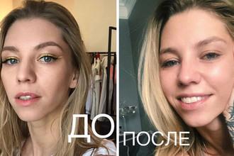 Изуродовали? Собака покусала лицо дочери Ирины Салтыковой