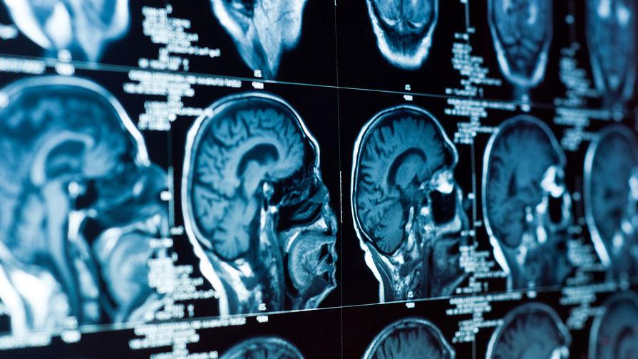 Пациент с половиной мозга обнаружен в Подмосковье