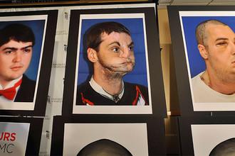 Серия фотографий Ричарда Ли Норриса на пресс-конференции в медицинском центре в Балтиморе, 2012 год