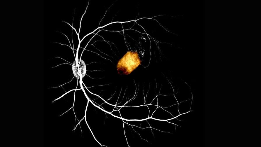 Пигментный эпителий сечтатки из стволовых клеток глаза человека, пересаженный на сетчатку макаки
