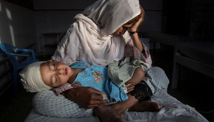 Женщина держит на руках своего двухлетнего племянника, раненого в результате взрыва в Кабуле...