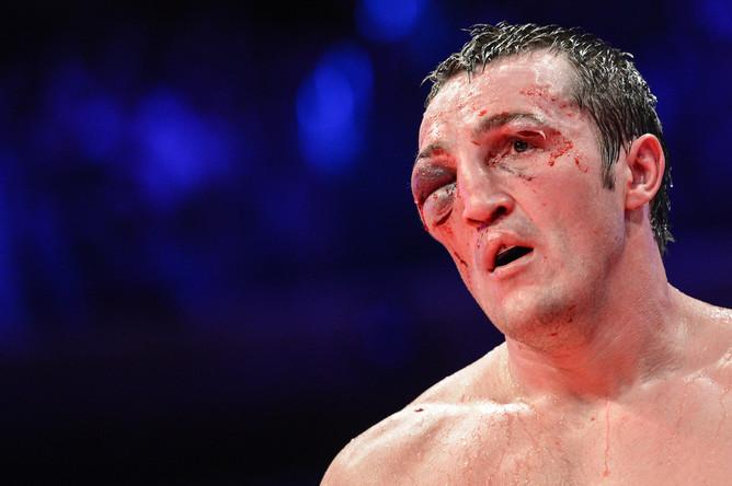 Лицо Лебедева после поражения от Гильермо Джонса- no comments...