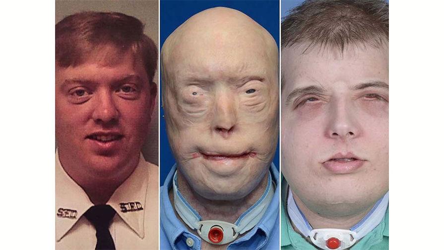 Пожарный, которому пересадили новое лицо, рассказал о своей жизни спустя 5 лет