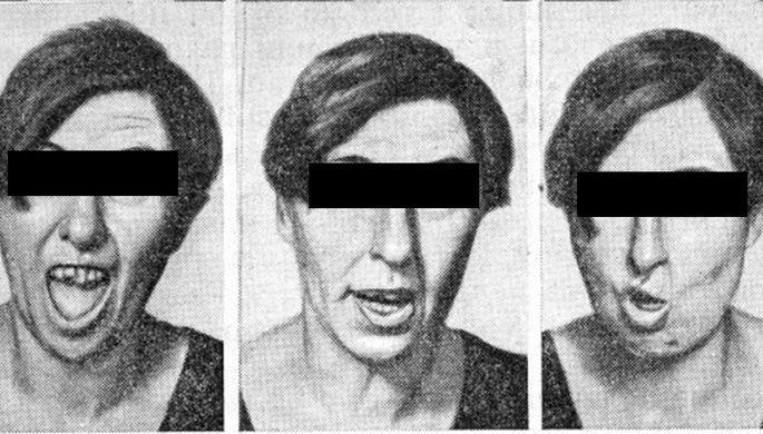 Проявления болезни Хорея Гентингтона