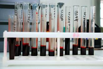 В лаборатории, где исследуют кровь на наличие ВИЧ