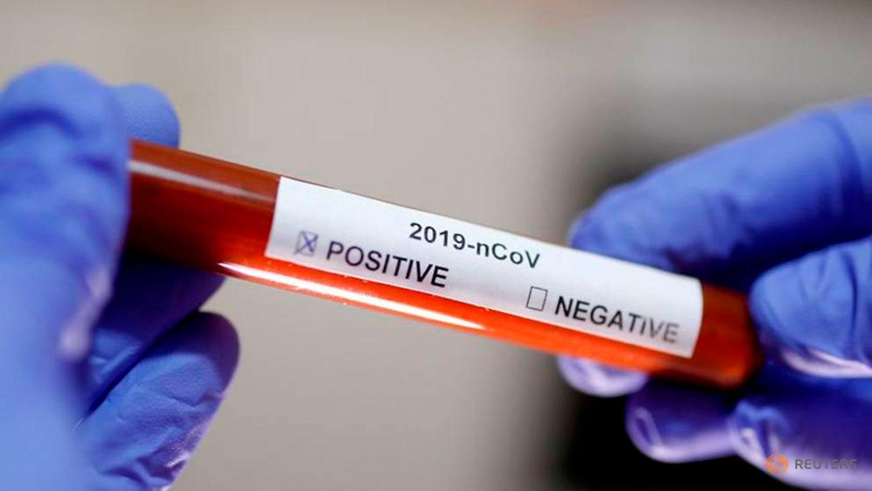 коронавирус кровь в кале