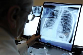 Туберкулез в Самаре на две трети китайский