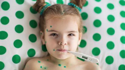 В России вводятся обязательные прививки от ветрянки