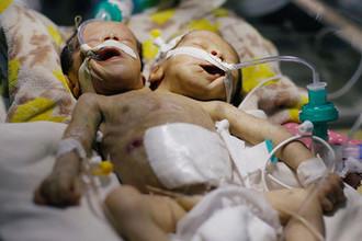 Сиамские близнецы Абдул-Халид и Абдул-Рахим в больнице йеменской Саны, 6 февраля 2019 года