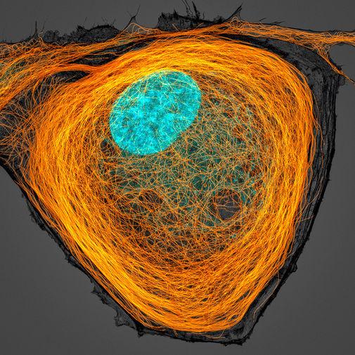 Микротрубочки (оранжевые) внутри клетки. Ядро показано голубым цветом
