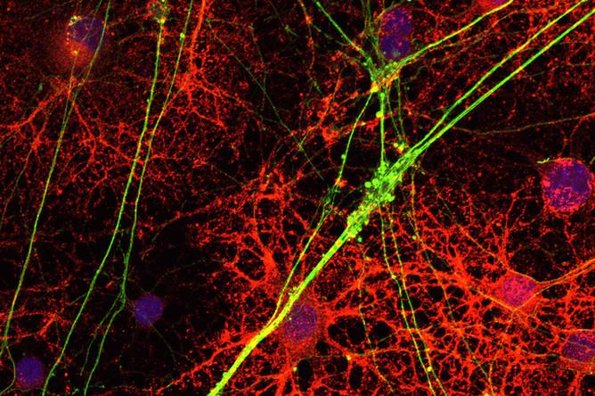 отмирание мозга при рассеянном склерозе
