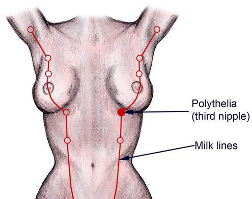 Вульва родившей австрийки стала вырабатывать грудное молоко