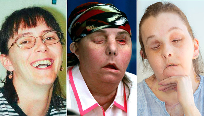 «У меня не будет третьего»: американке пересадили лицо во второй раз