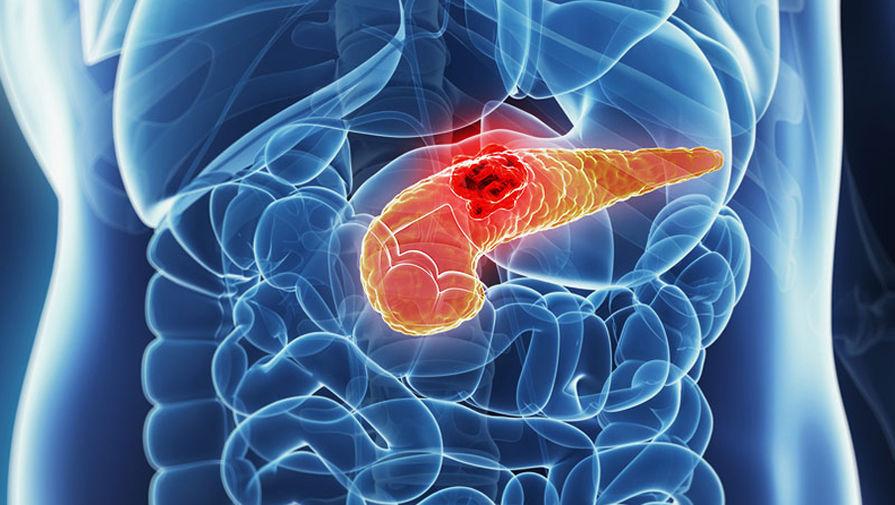 Найдены гены, отвечающие за выживание при раке поджелудочной железы - Газета.Ru