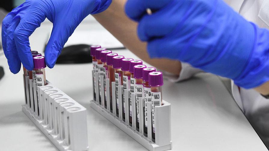 Иммунолог объяснил, почему антитела не всегда защищают от COVID-19