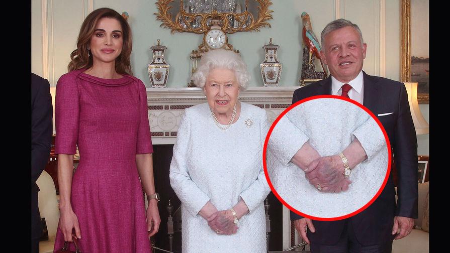 У английской королевы обнаружили синяк на руке