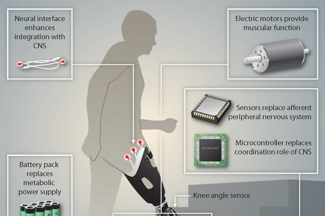 Основные элементы бионического протеза
