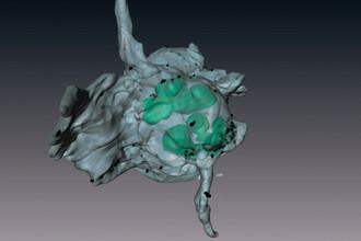 «Летящий» сверхактивированный тромбоцит с шапкой. Помещена на обложку журнала Blood. Михаил Пантелеев сравнивает тромбоцит здесь с «летящим пингвином»