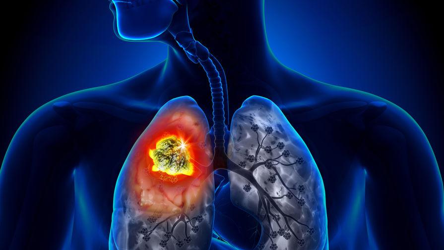 Ученые назвали неочевидный симптом рака легких