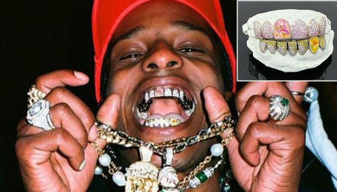 Улыбка на миллион: как звезды украшают зубы