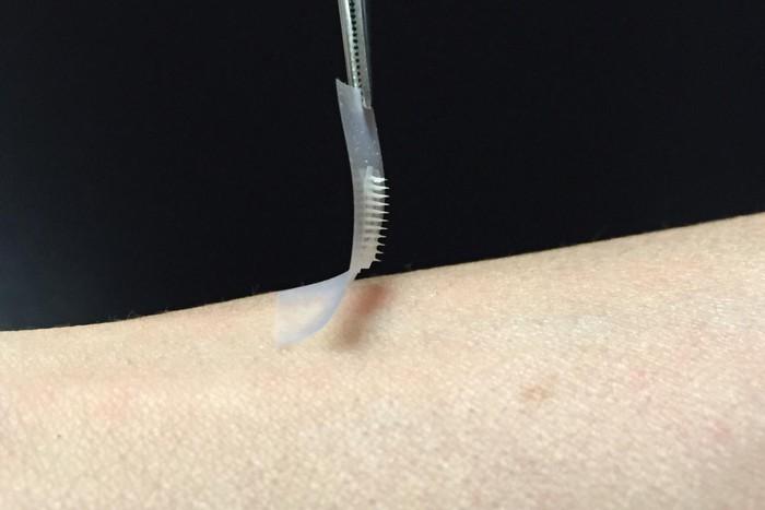Инсулиновый пластырь в будущем заменит инъекции