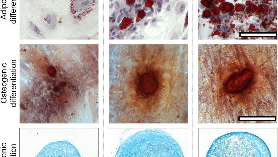 В менструальной крови нашли вещество, предотвращающее появление рубцов