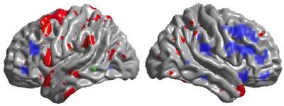 Сводные результаты структурной и функциональной МРТ. Относительно контрольной группы, у участниц эксперимента обнаружены области, в которых увеличилась кора головного мозга (отмечены красным) и области, в которых увеличилась эффективность работы головного мозга (отмечены синим). Слева изображение левого полушария головного мозга, справа- правого полушария // Richard J Haier et al, BMC Research Notes, 2009