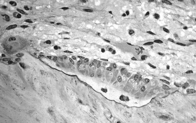 Формирование костной ткани остеобластами