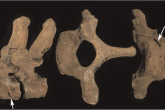 Первый и второй грудные позвонки мужчины Сунгирь-1 сбоку (слева) и первый грудной позвонок сверху и спереди. Повреждение отмечено стрелкой. Шкала указана в сантиметрах